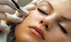 dermoabrazija lica tretman za akne