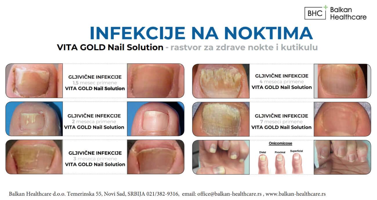 sprej za bolesti nokta